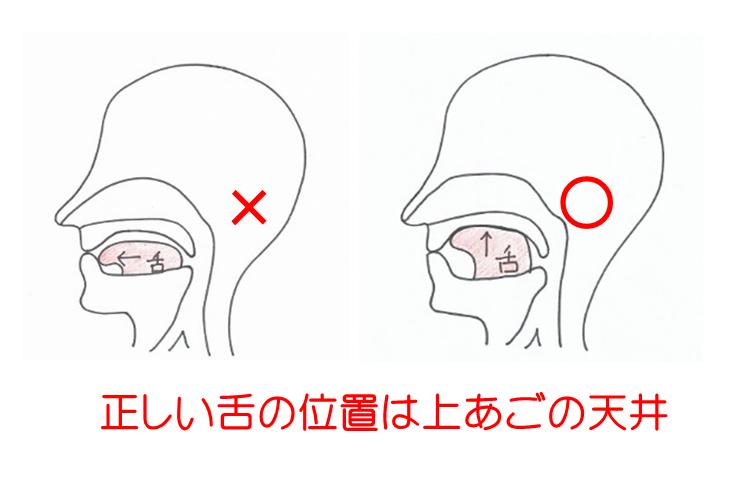 「舌の正しい位置」が風邪の予防になる❗🙌